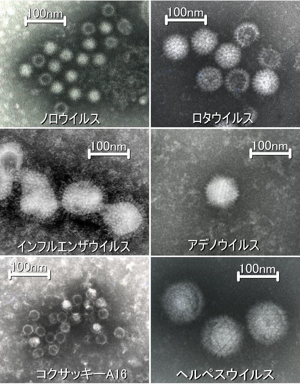 ウイルス〜